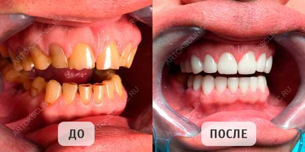 виниры. фото до и после