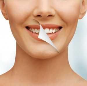 Какие зубы у звезд эстрады – Голливудская улыбка