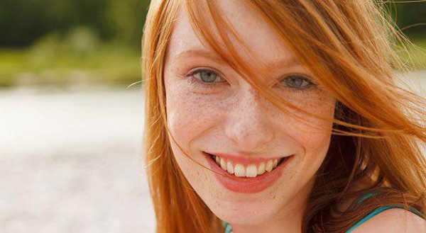 Фото рыжие с бархатной кожей трансом житомир частное